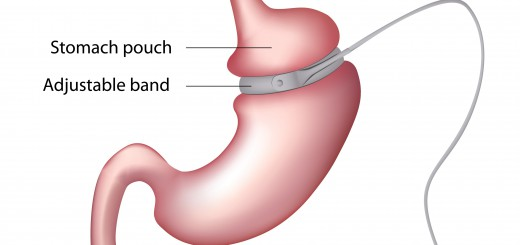 bendaggi gastrico